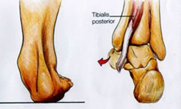 Il tibiale posteriore - Ortopedia Dr. Mazzucchelli